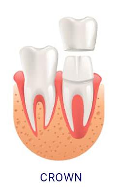 DentalCrown