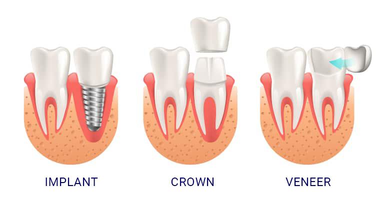 DentalImplants_vs_Crowns_VS_Veneers